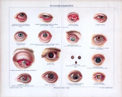 Augenkrankheiten ca. 1885 Original der Zeit