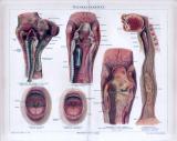 Chromolitographie aus 1885 zeigt Halskrankheiten in...