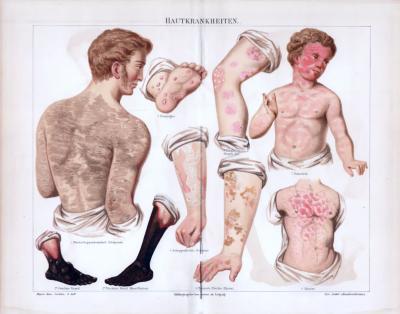 Chromolithographie aus 1885 zeigt verschiedene Hautkrankheiten in medizinischer Darstellung.