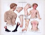 Chromolithographie aus 1885 zeigt verschiedene...