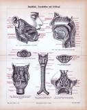 Stich aus 1885 zeigt medizinische Darstelungen von...
