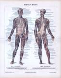 Farbige Lithographie aus 1885 zeigt in medizinischer...