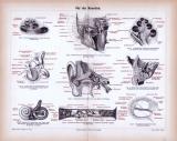 Stich aus 1885 zeigt medizinisches Ansichten des...