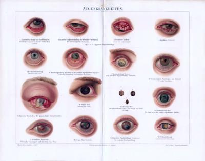 Chromolithographie zum medizinischen Thema Augenkrankheiten asu dem Jahr 1893.