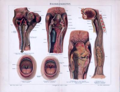 Chromolitographie aus 1893 zeigt Halskrankheiten in medizinischer Sicht.