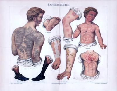 Chromolithographie aus 1893 zeigt verschiedene Hautkrankheiten in medizinischer Darstellung.